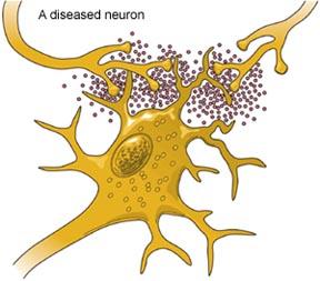 Glutamate - The ALS Association